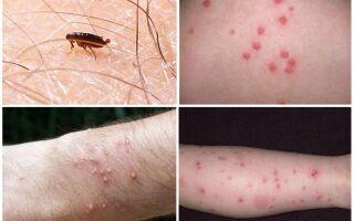 Фото укусів бліх на людину — як і чим їх лікувати